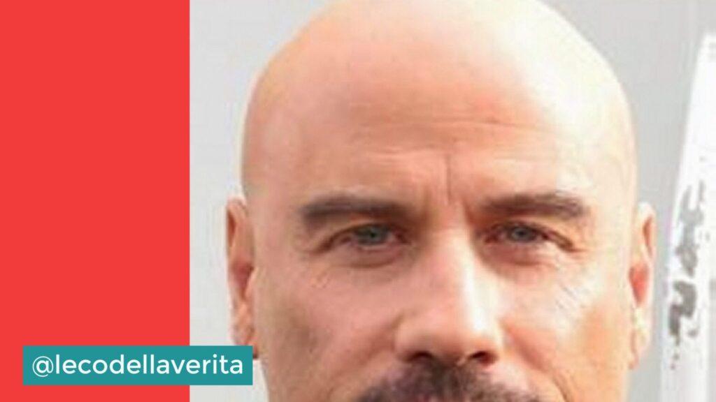 Alopecia: ne soffre un italiano su tre